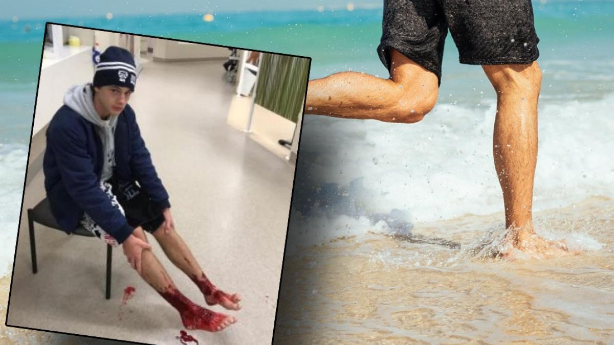"""Gdy wyszedł z morza, jego nogi były całe pokrwawione. """"Próbowaliśmy zmyć krew, ale nie przestawała płynąć"""""""
