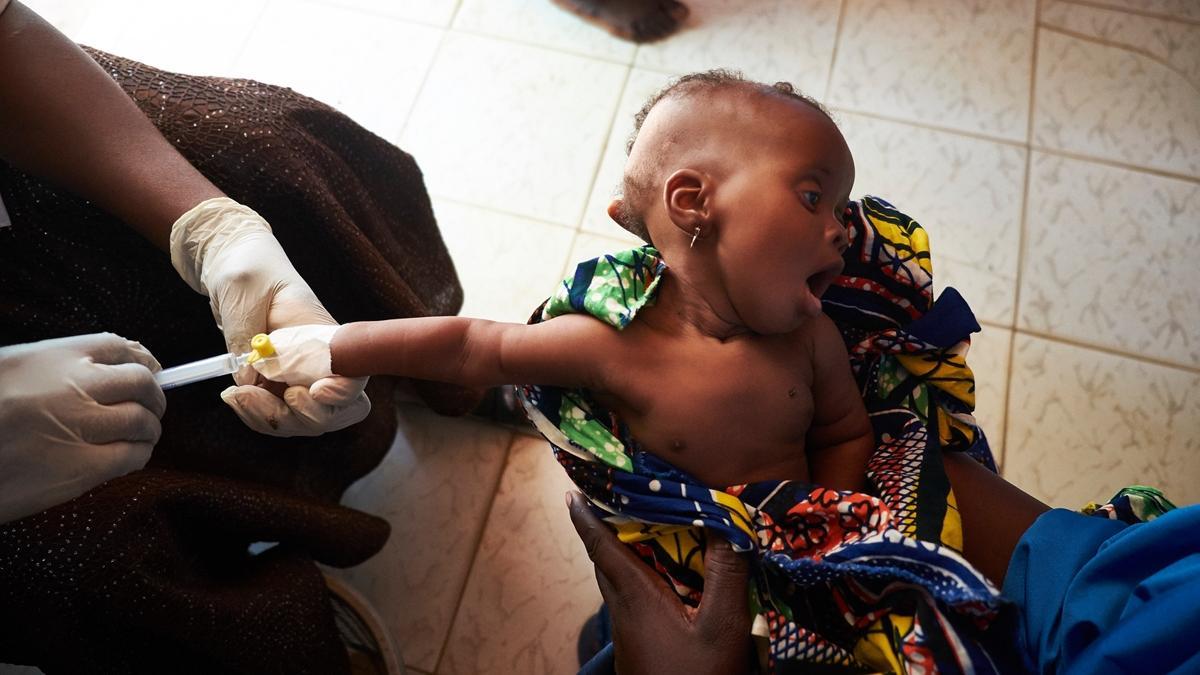 Niedożywione dziecko z Afryce