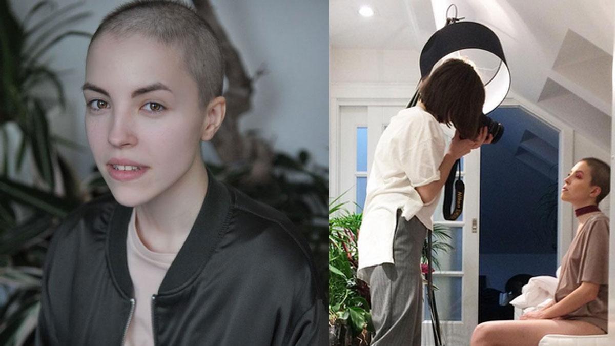 To nie modelka z okładki modowego magazynu, a Magda: 17-latka, która choruje na raka