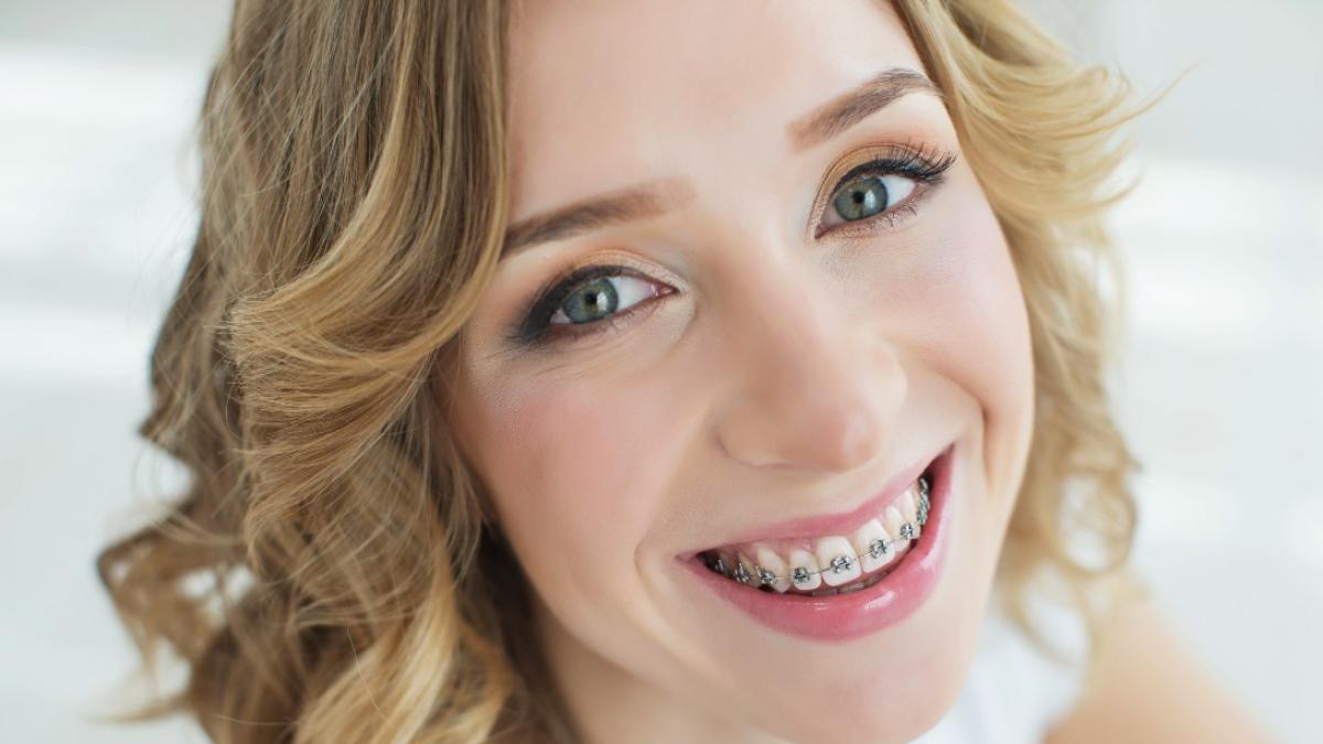 Zastanawiasz się nad aparatem na zęby? Zobacz jakie efekty możesz osiągnąć!