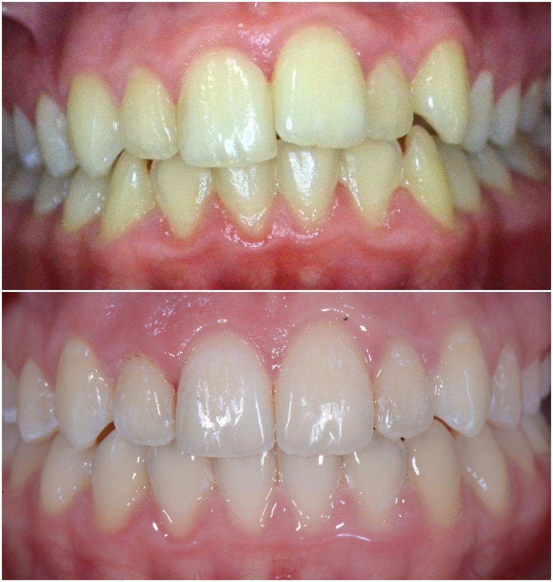 Aparat ortodontyczny przed i po