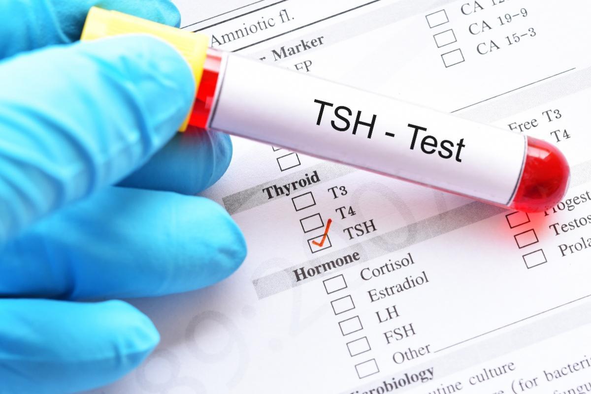 badanie TSH