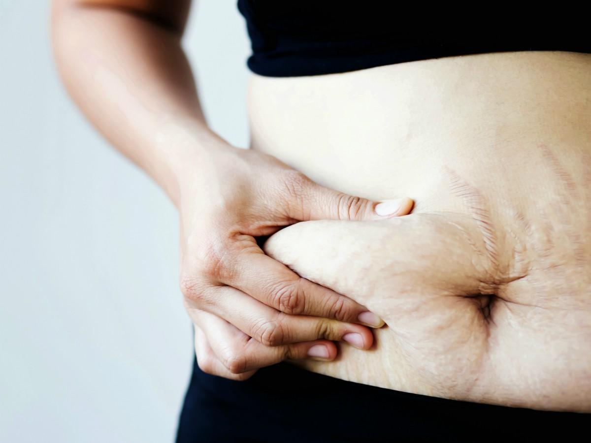 Jak wygląda brzuch po ciąży