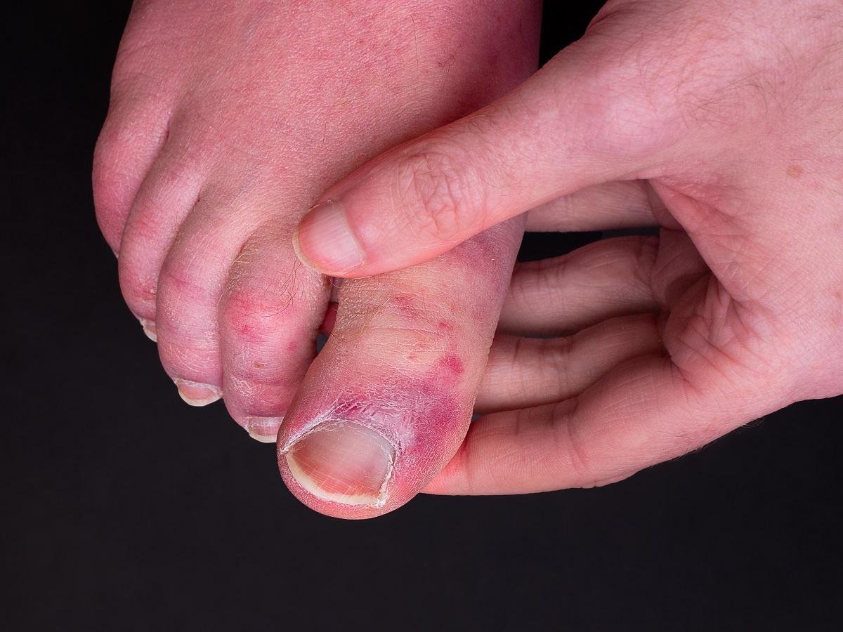 Jak schudnąć z rąk? Ćwiczenia na opuchnięte i grube ręce oraz palce - Odchudzaj zdrowo