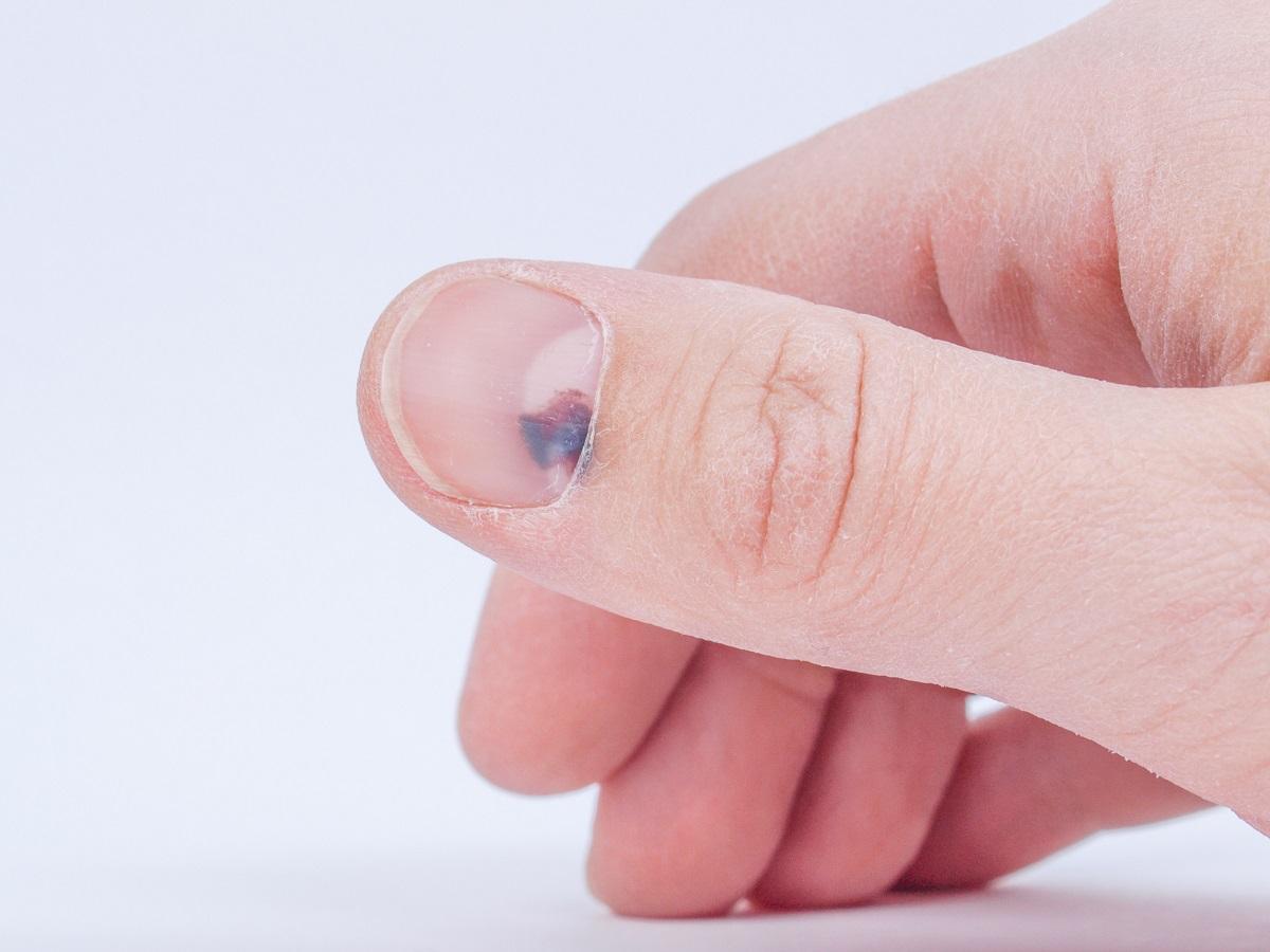 czerniak pod paznokciem