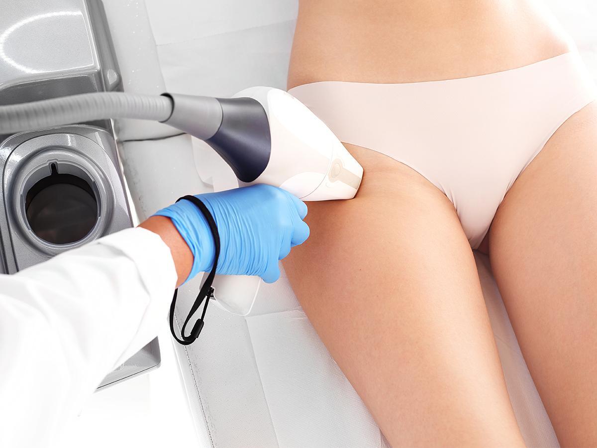 depilacja laserowa nóg cena