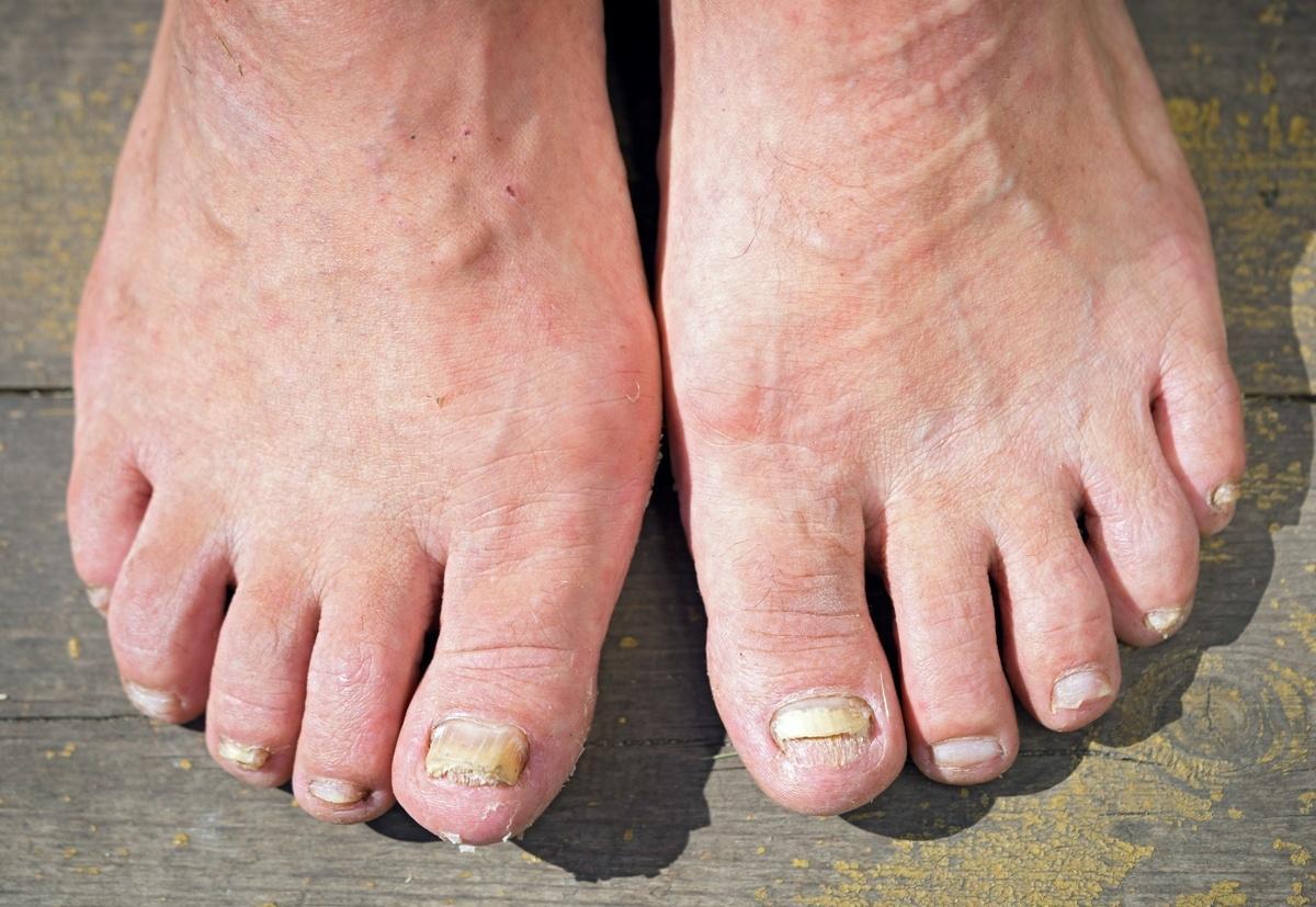 paznokcie z grzybicą