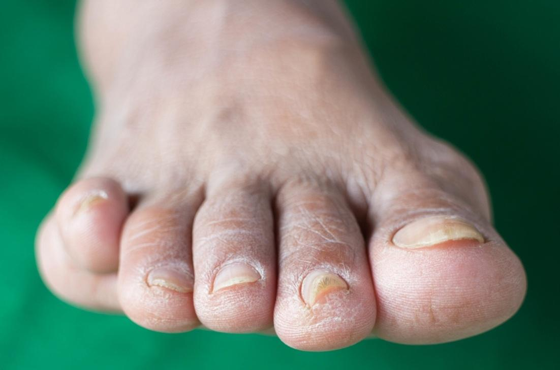 grzybica na paznokciach