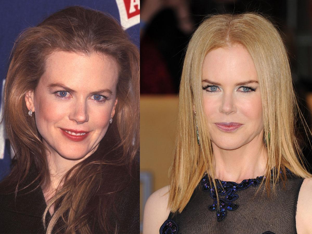 Nicole Kidman, botoks, przed i po