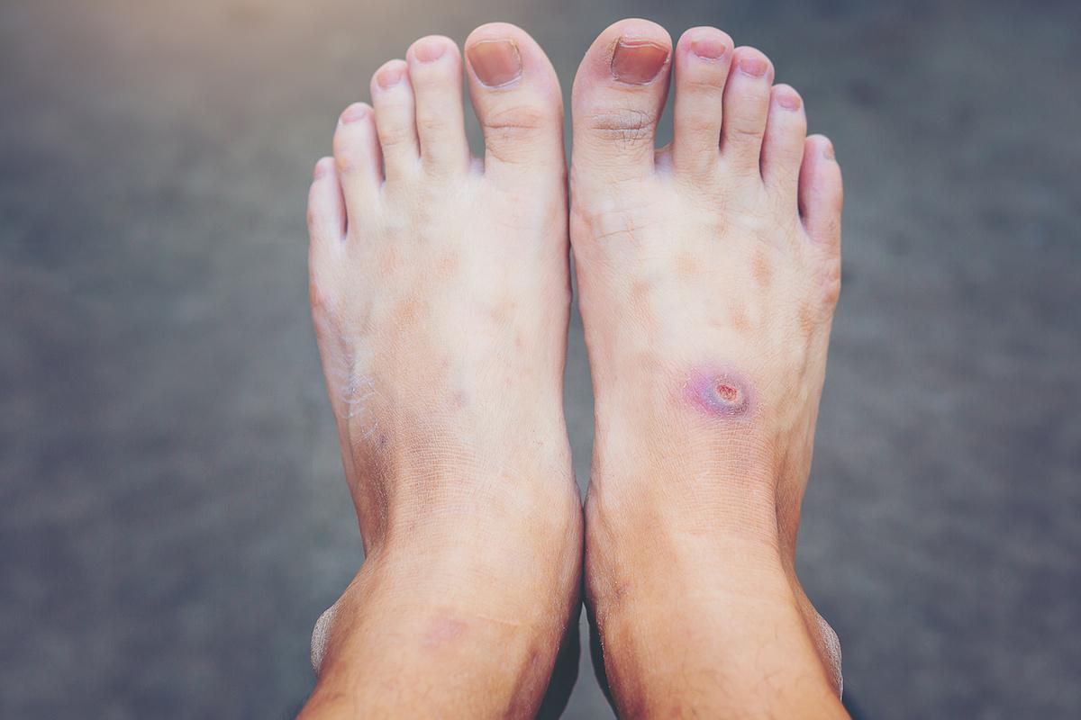stopa cukrzycowa objawy