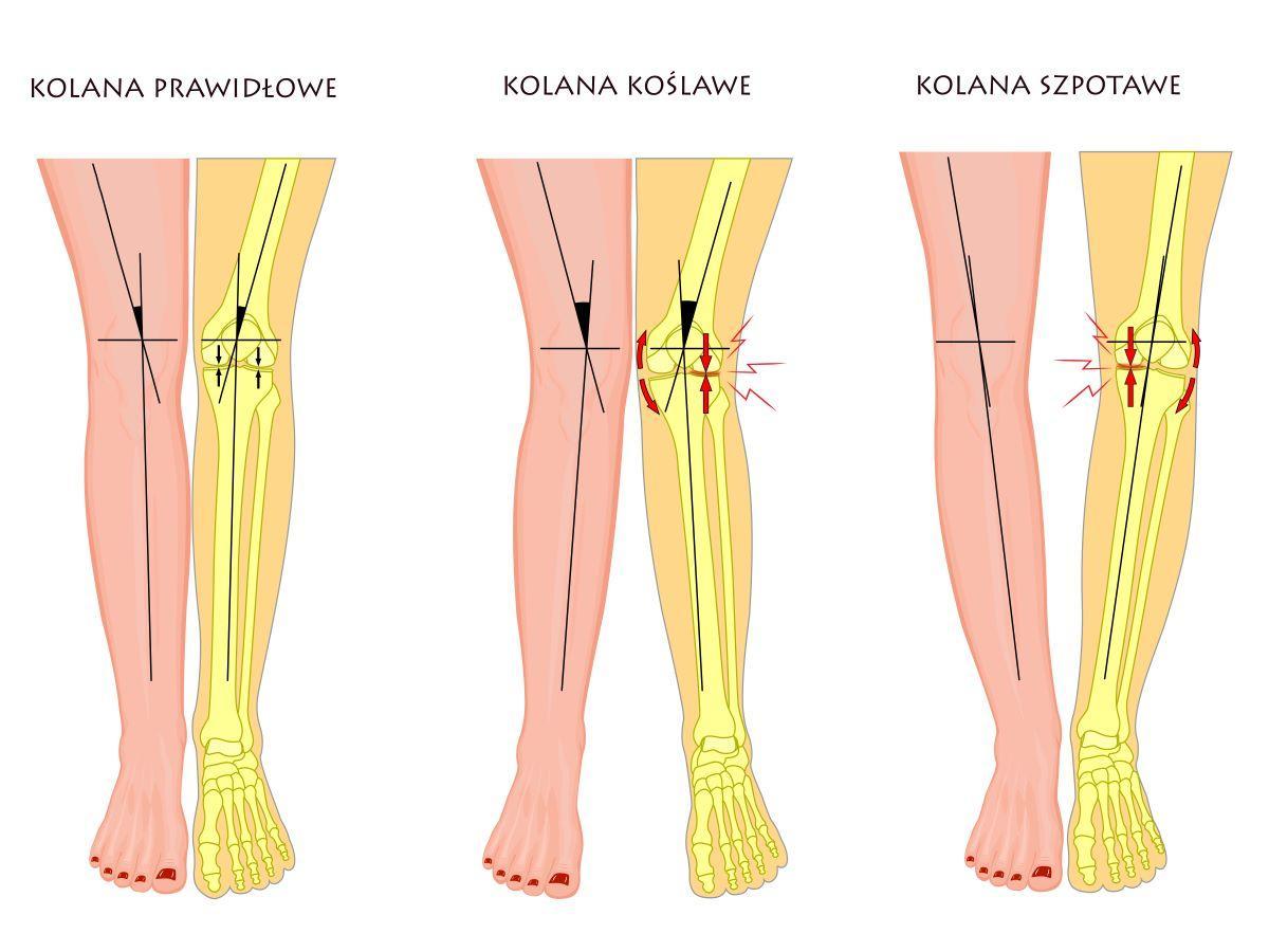 szpotawe kolana