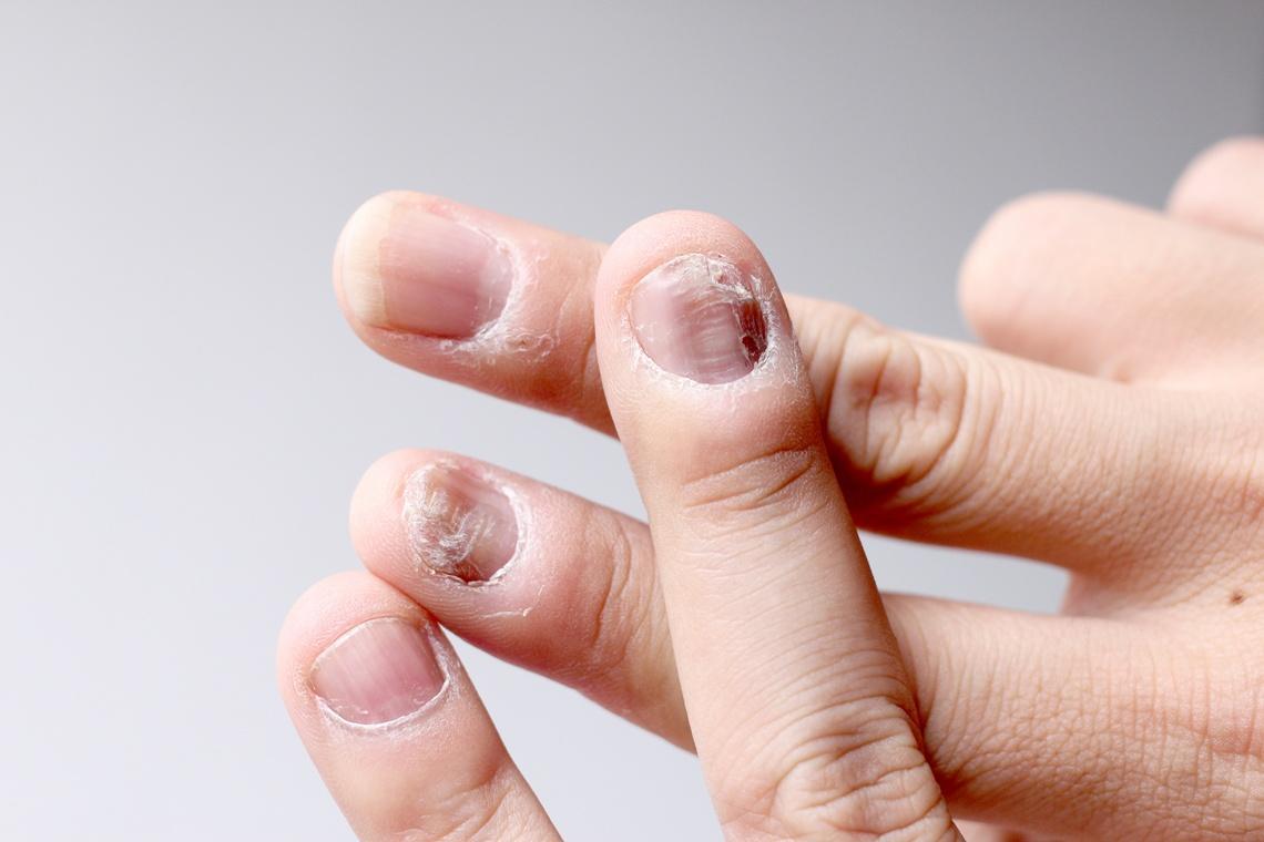 łuszczyca paznokcia