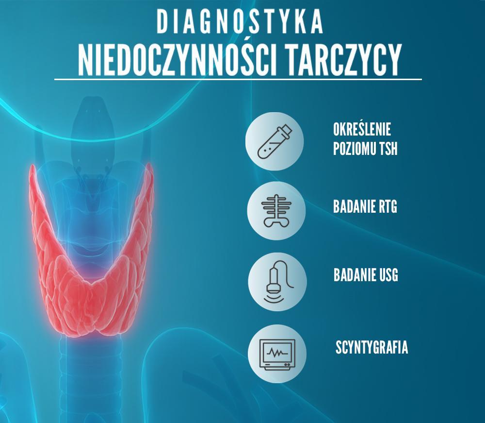 niedoczynność tarczycy diagnostyka