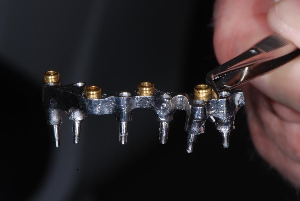 Implanty, jakie wszczepiono pacjentowi fot. Prodenta