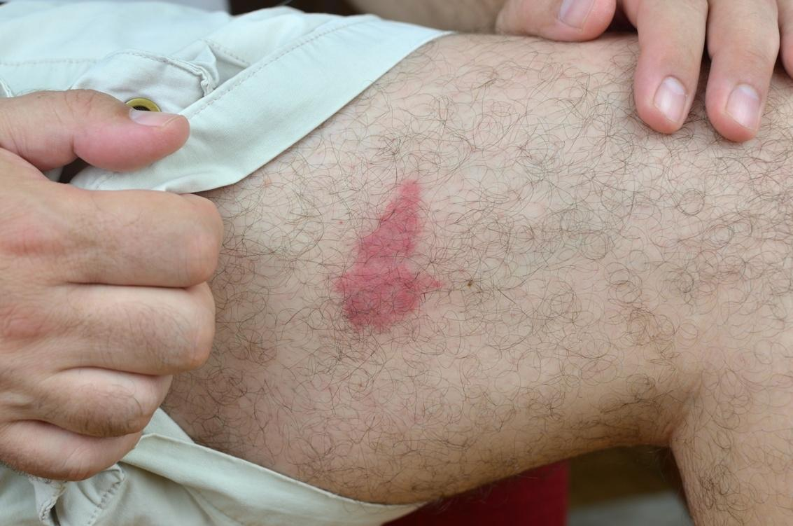 Opuchlizna po użądleniu osy na nodze