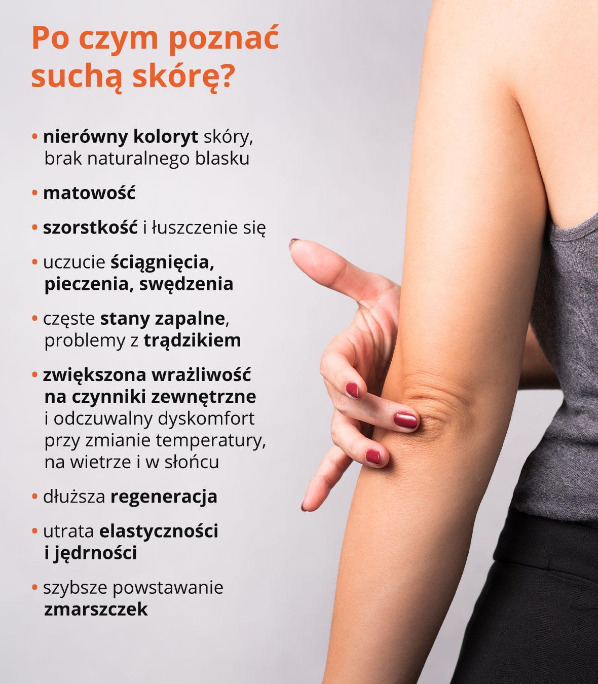 Po czym poznać suchą skórę -infografika
