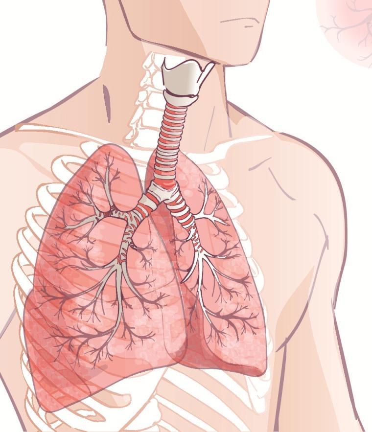 rak płuca