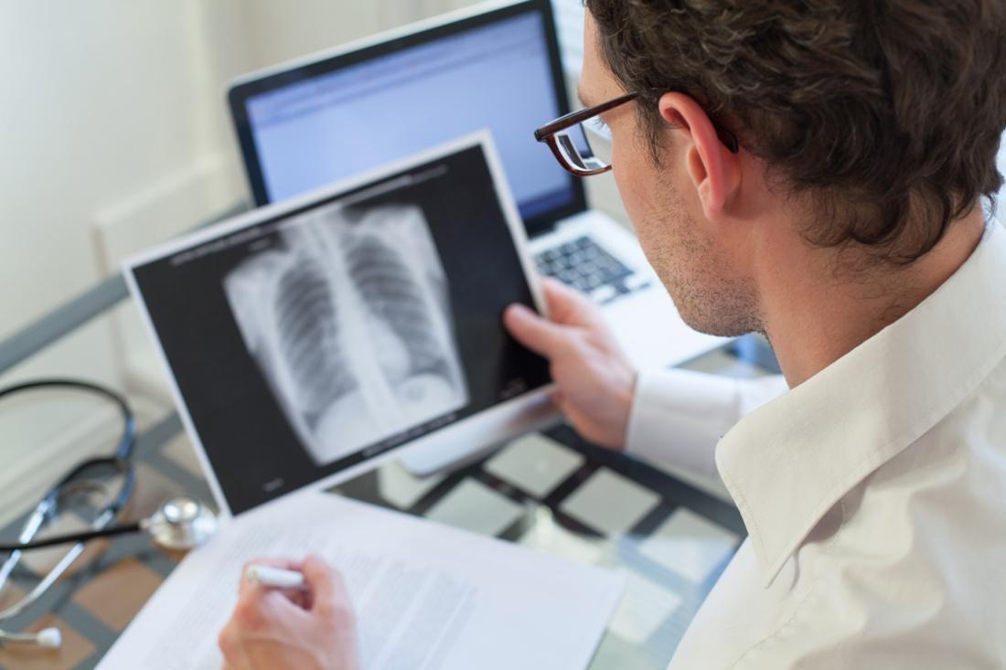 rak płuc rokowania