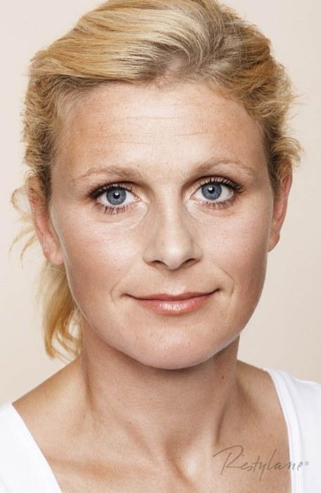 Restylane Skinboosters – nawilżanie i rewitalizacja skóry