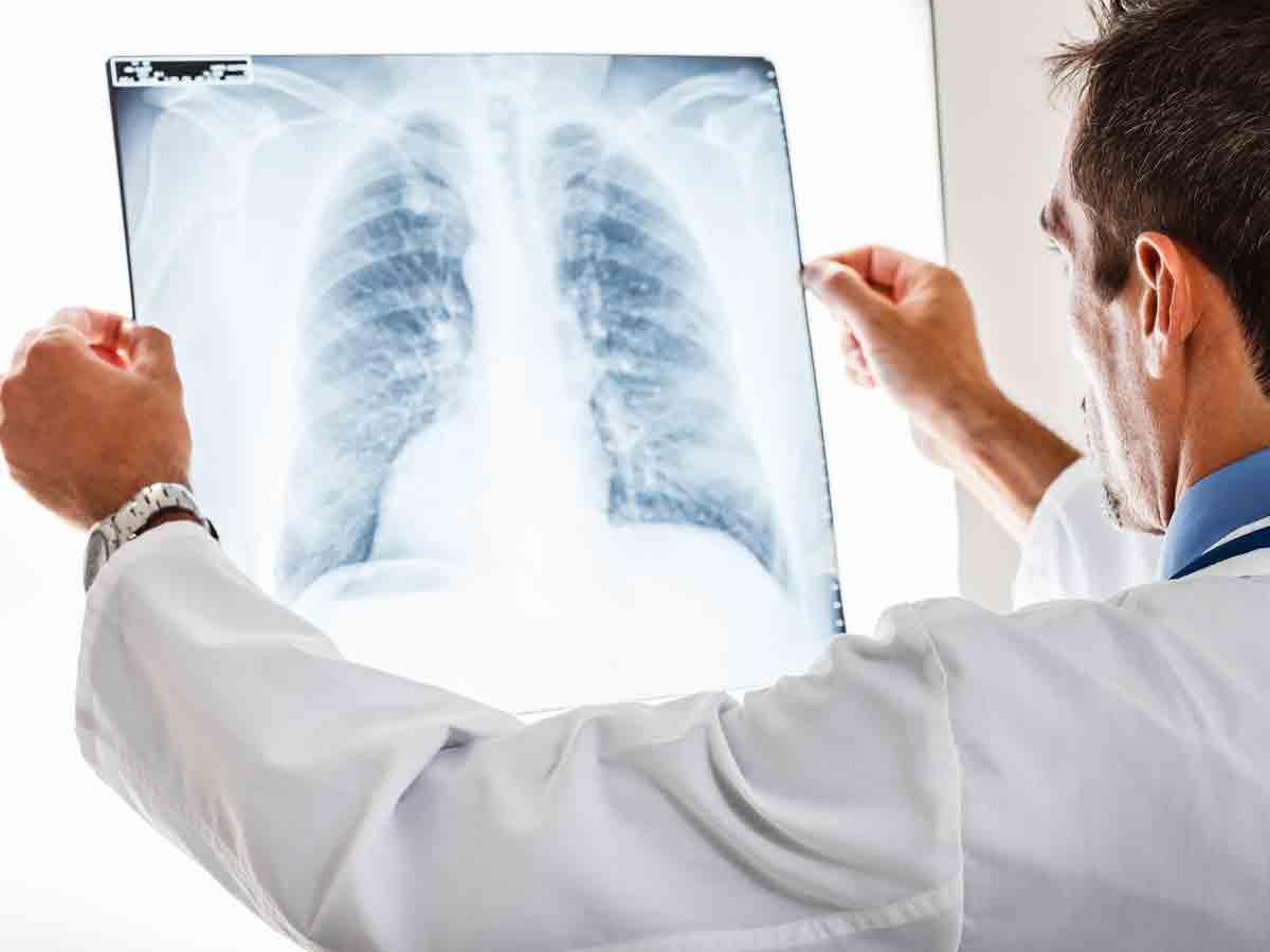 diagnostyka zapalenia płuc