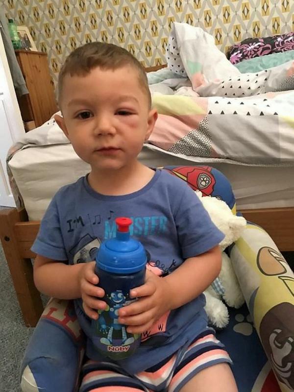 Po Wizycie W Lidlu 2 Latek Dostał Silnej Reakcji Alergicznej