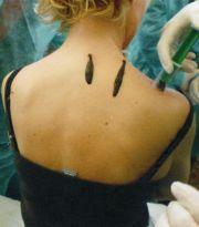 Hirudoterapia, leczenie pijawkami