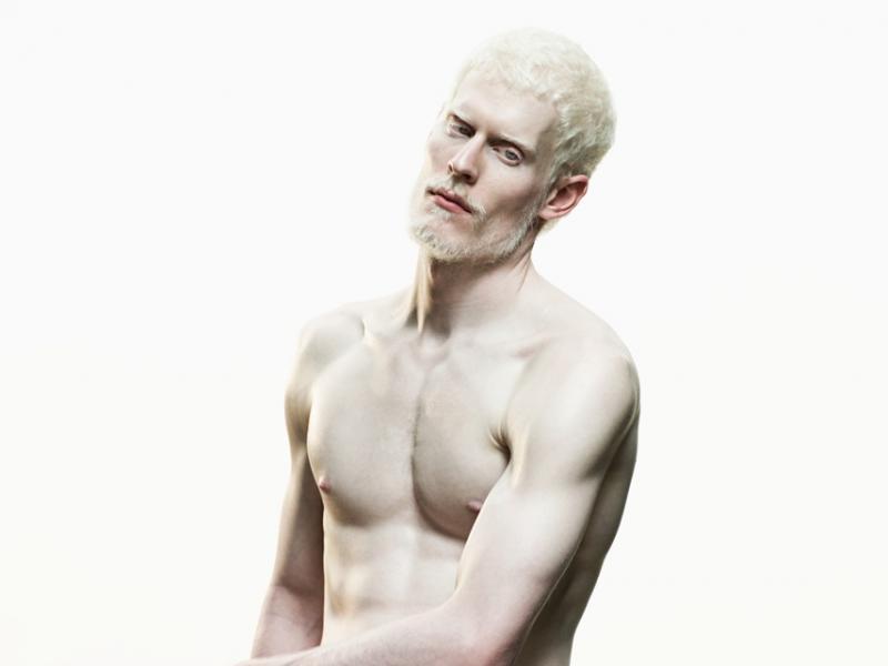 Albinizm – wszystko o bielactwie nabytym