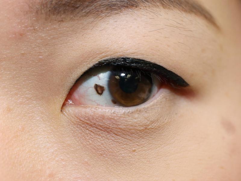 czerniak oka