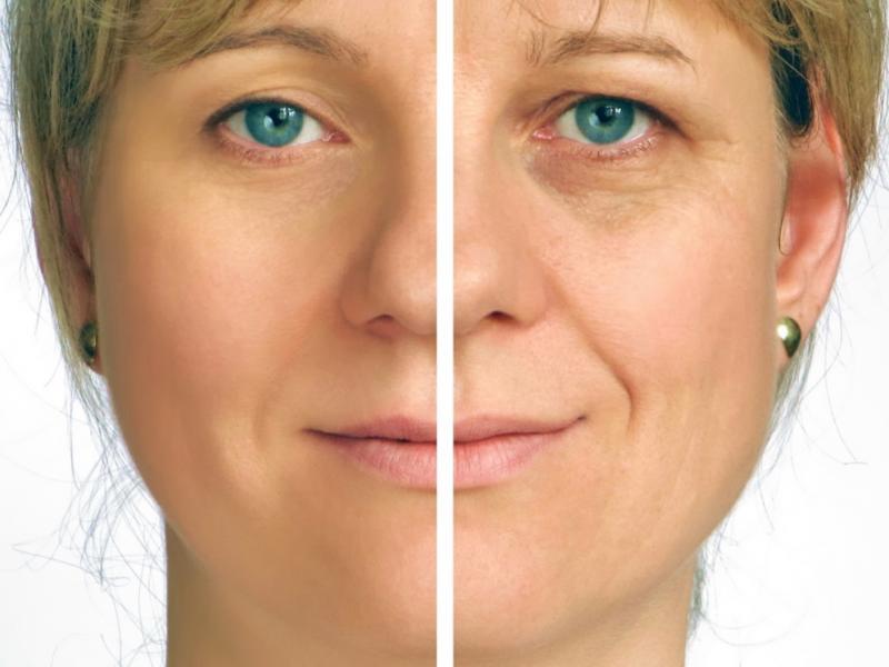 Czy warto robić lifting twarzy i szyi?