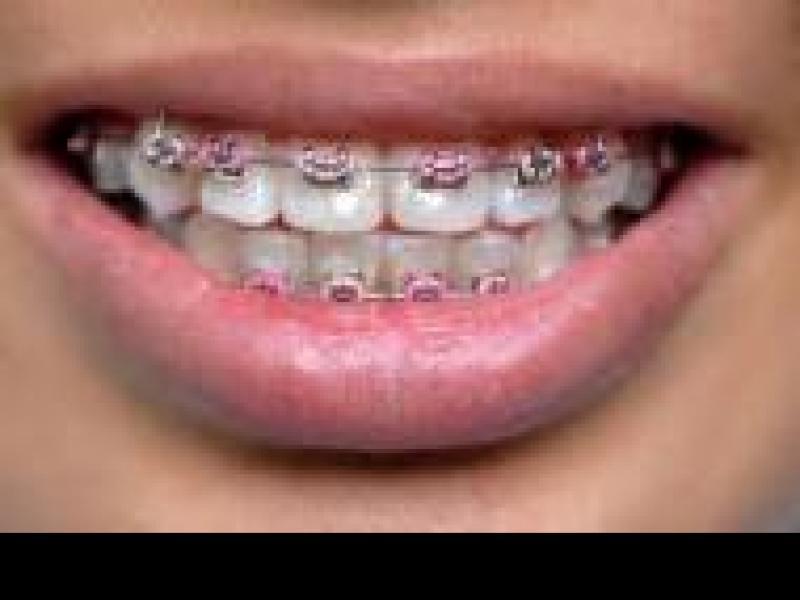 Czy wiesz jak dbać o zęby?