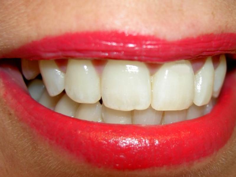 Czy wiesz jak powiększyć usta za pomocą kosmetyków z twojej kosmetyczki?