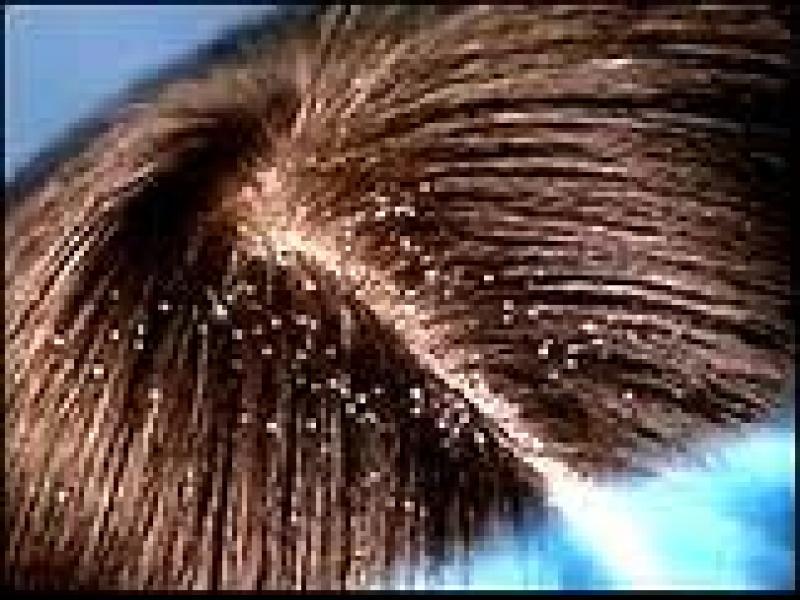 Czy wiesz jak przygotować mieszankę do włosy z łupieżem?