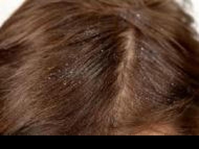 Czy wiesz jak przygotować wzmacniający szampon do włosów z łupieżem?