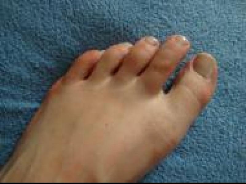 Czy wiesz jak radzić sobie z odciskami na stopach?