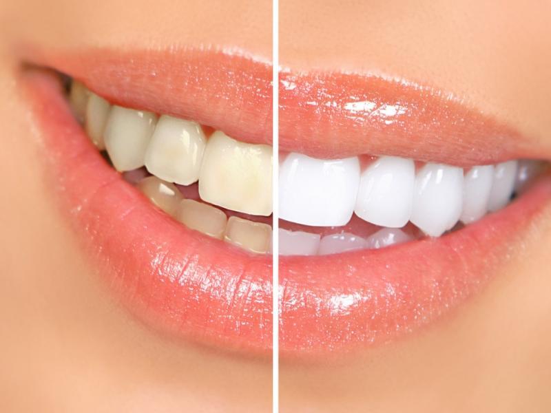 Czy wiesz jak wybielić zęby domowymi sposobami?