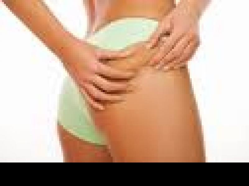 Czy wiesz jak zwalczyć cellulit?