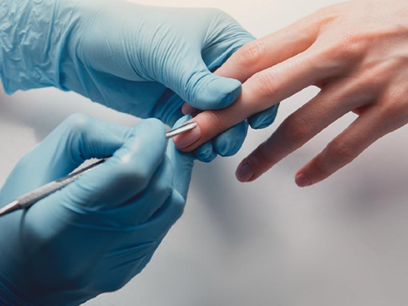 infekcje podczas manicure