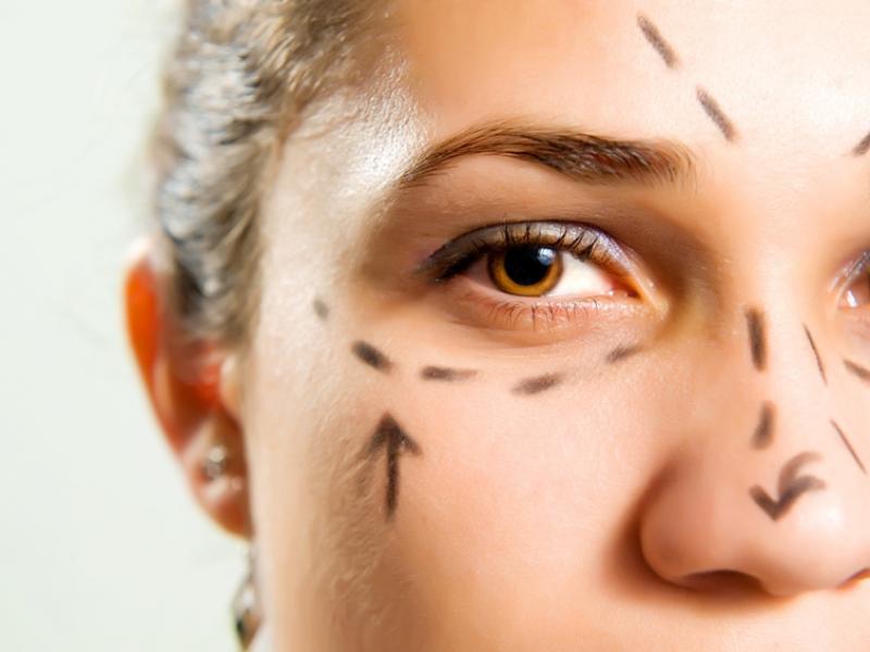 Jak usunąć worki i cienie pod oczami?