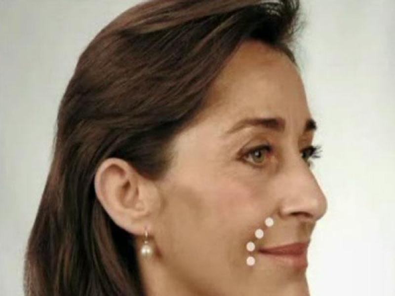 Korekcja bruzd nosowo-wargowych