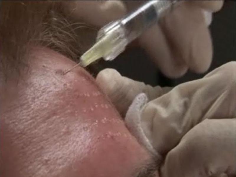Mezoterapia czoła