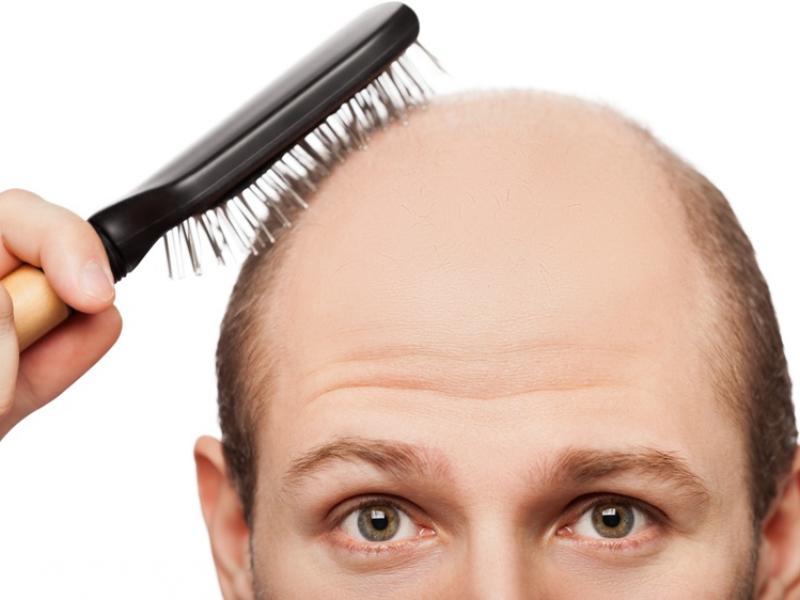 Mezoterapia – jak powstrzymać łysienie?