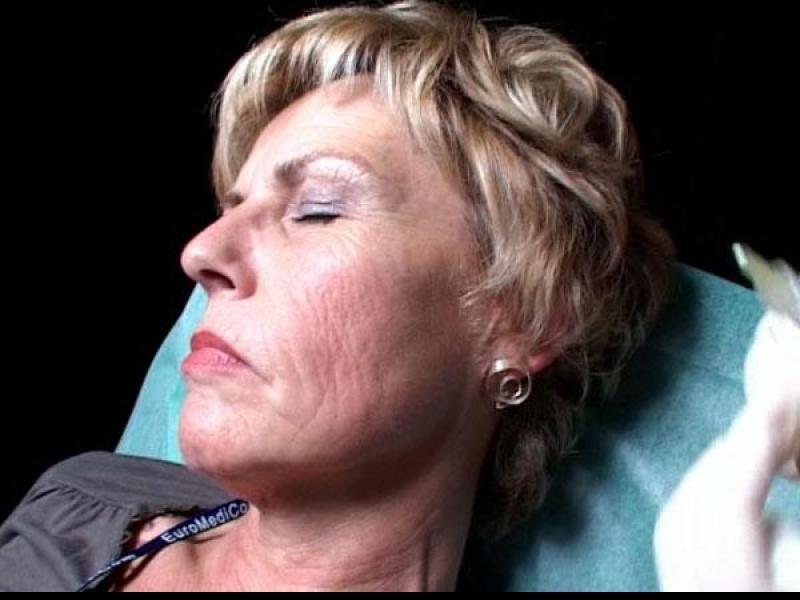 Mezoterapia policzków, owalu twarzy