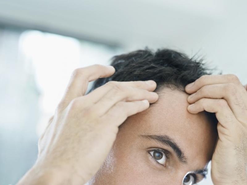 Łysienie plackowate dotyka najczęściej osoby młode (głównie mężczyzn), a także chorych np. na bielactwo, zapalenie tarczycy lub jelita grubego/fot. Fotolia
