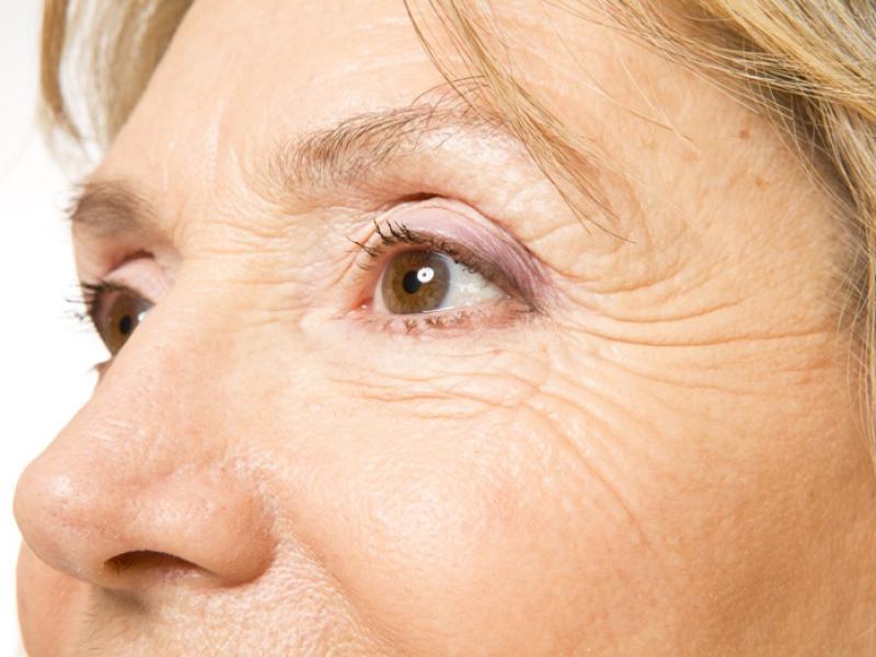 Odzyskać blask, czyli domowe sposoby na cienie i worki pod oczami