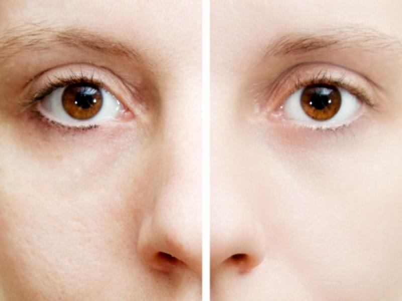 Plamy na skórze – jak usunąć przebarwienia?