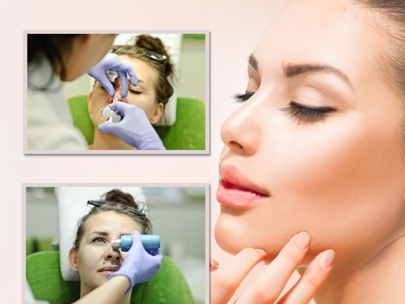 Redakcja przetestowała: korekta nosa kwasem hialuronowym