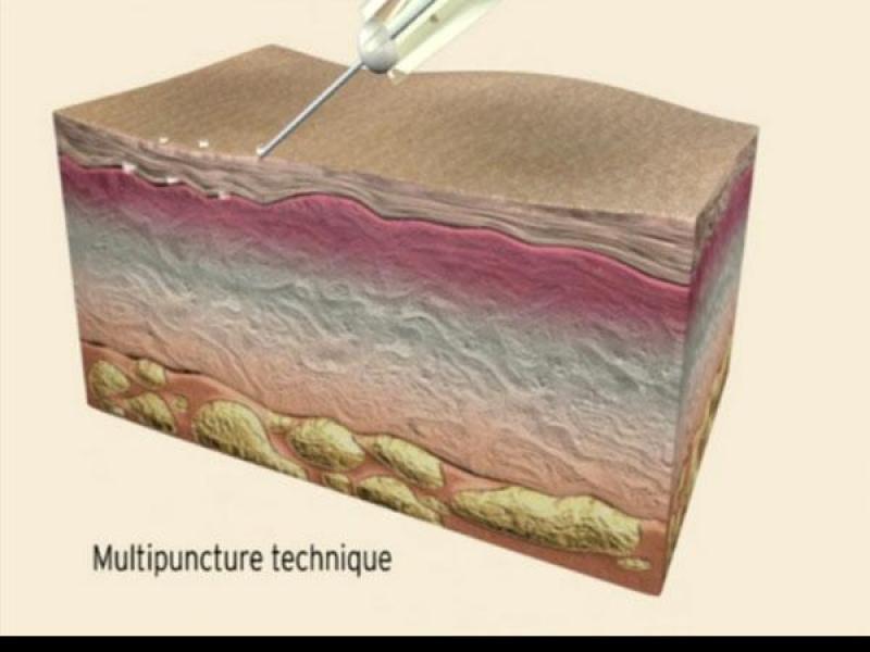Techniki mikroinjekcji