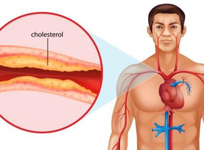 24 września – Dzień Świadomości Hipercholesterolemii Rodzinnej