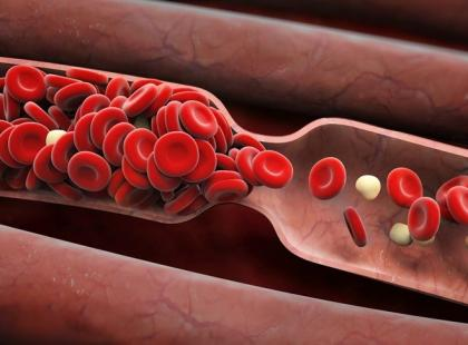 28 maja – Światowy Dzień Walki z Nowotworami Krwi