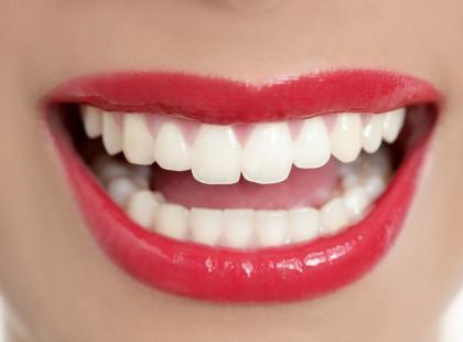 4 nowoczesne metody na proste i piękne zęby!